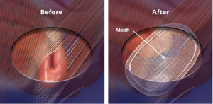 Back Hip And Knee Problems Due To A Cesarean Or Other